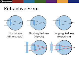 Refractive Errors and optical maser Vision Correction