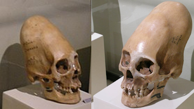 Really large elongated skulls from the ancient world.