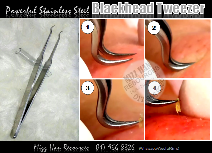 how to use blackhead remover hook tweezer