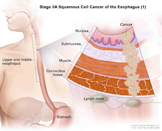 The basic guide: Esophageal Cancer