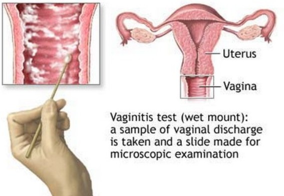 Take a Sample of Vaginal Discharge For Testing
