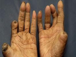 Pengobatan Herbal Penyakit Lepra