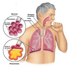 Cara Alami Mengatasi Radang Paru-Paru Basah Secara Efektif Dan Cepat (Obat Pneumonia)