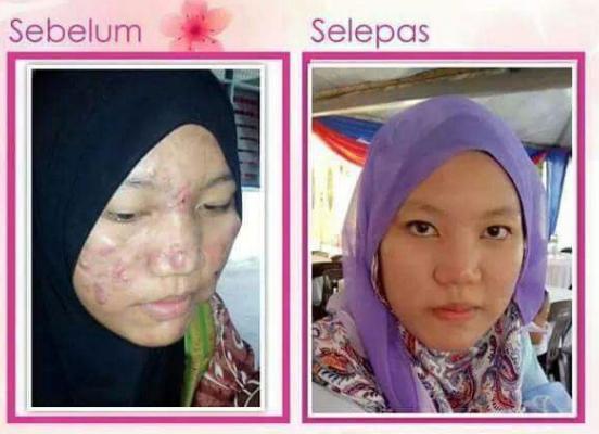 nurraysa beauty skincare feedback