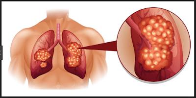 Hydrogin Atom Solusi Terbaik Penyakit Kanker
