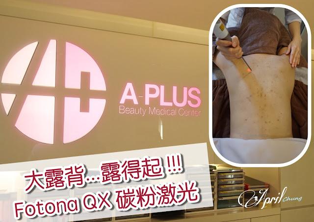 A-Plus_FotonaQX_01