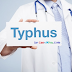 Pengobatan Herbal Untuk Penyakit Tifus