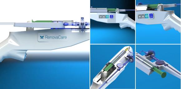Stem cells delivered via Skin gun can reduce second degree
