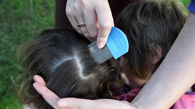طرق مجربة لعلاج القمل والصيبان عند الاطفال الرضع