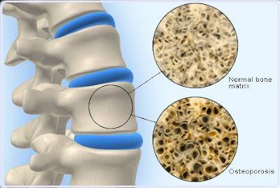 premium beautiful corset mencegah osteoporosis dan patah tulang belakang dan pinggul dengan cahaya FIR dan membantu vitamin D synthesis