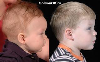 Фото детей с краниостенозом до и после операции