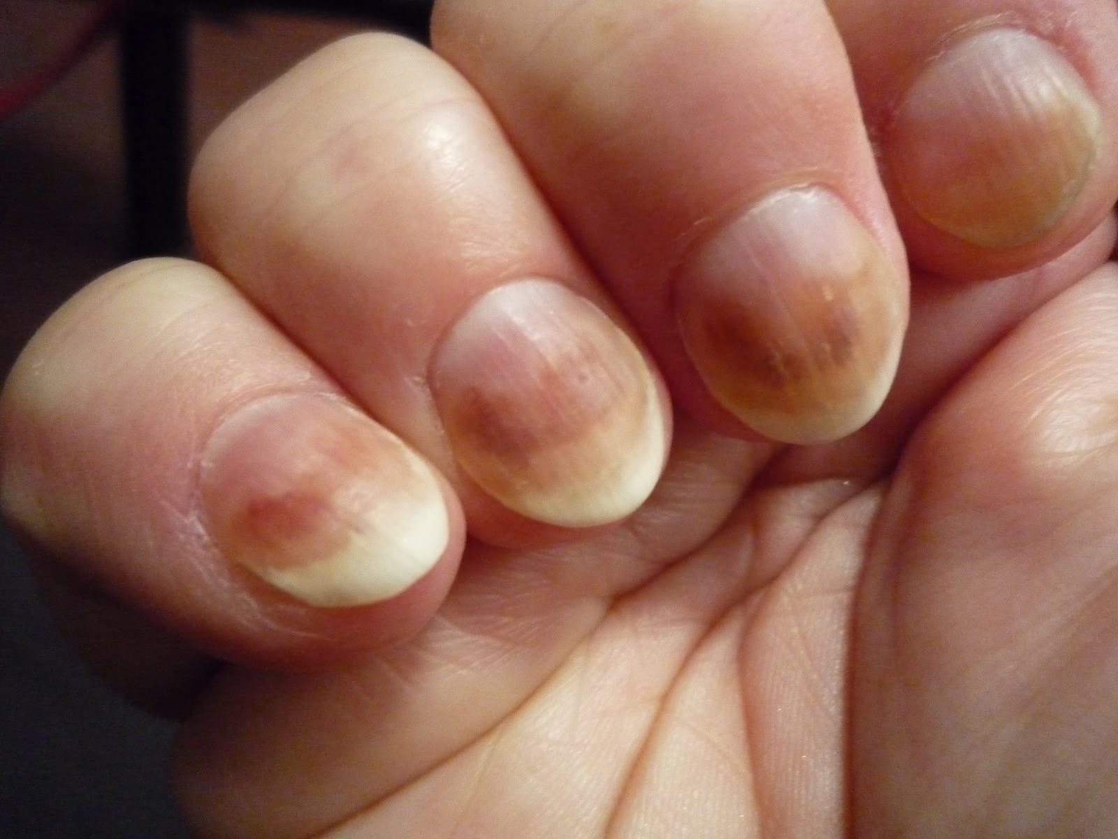 Image result for toe fungus journey