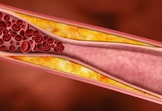 cara alami menghilangkan penyumbatan pembuluh darah