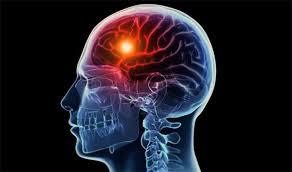 Obat Alternatif Stroke Ringan, apa gejala awal stroke yang ringan?, Cara Alami Mujarab Mengobati Penyakit Stroke Ringan