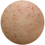 What type of acne do you suffer from?