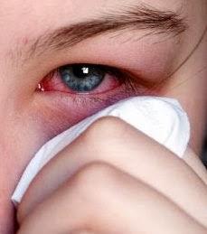 Foto de un niño con dañado con conjuntivitis