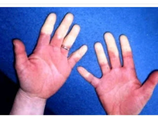 11 Causes Of Raynaud's Disease + Ways To Prevent Raynaud's Disease