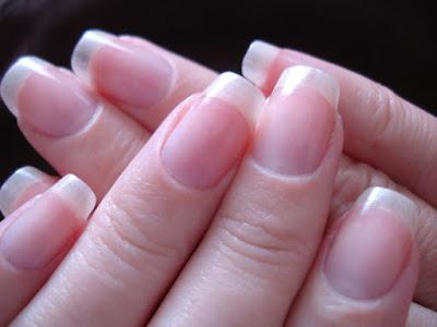 Tips Mendeteksi Penyakit Melalui Warna Kuku
