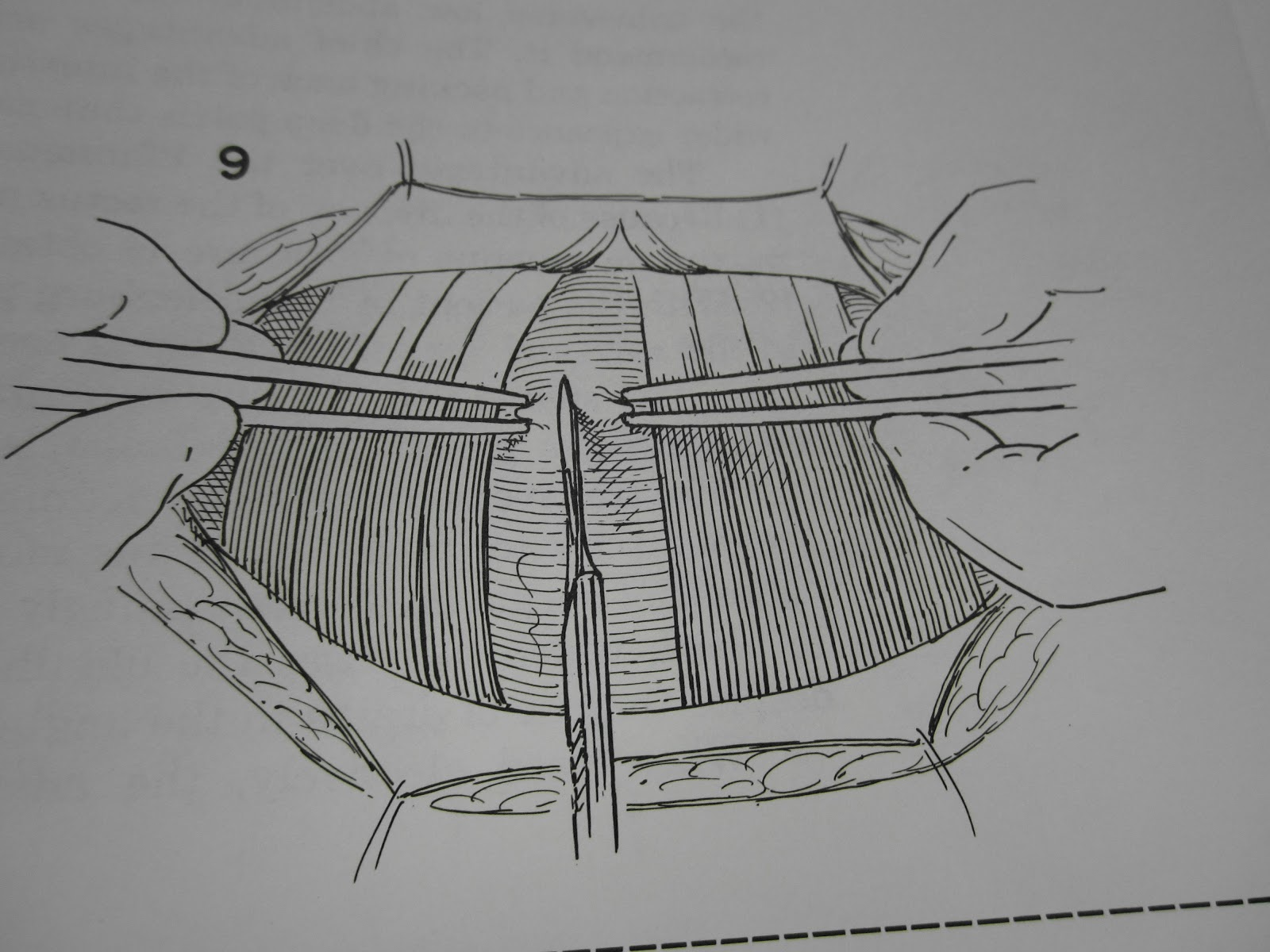 The Pfannenstiel Incision  Opening And Closing The Tummy