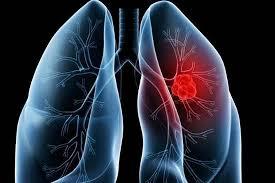 Nursing Care Plan for Pulmonary Embolism - 4 Nursing ...
