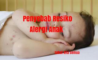 Penyebab Resiko Alergi Anak