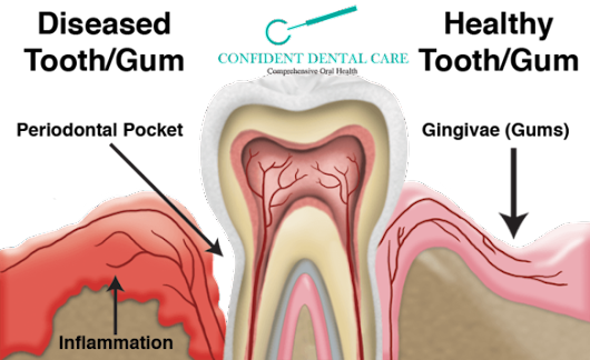 Best Gums treatment Clinic in Bangalore India