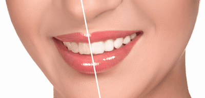 6 Signs You Need to Have Dental Veneers