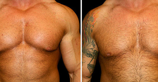 Performance Enhancing Drugs and Gynecomastia