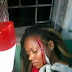 Someone said this woman was caught sleeping with her sister's husband, so they slashed her face in two