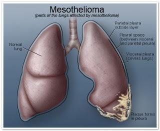 Mesothelioma – Your Basic Information