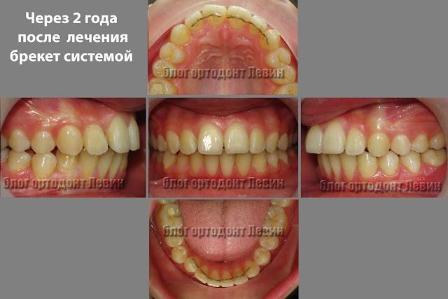 Пациент с рецидивом лечения и поломкой ретейнера