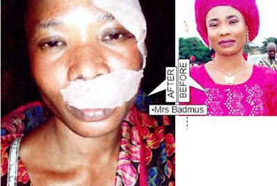 Married Woman Brutalized By Hoodlums In Lagos Market
