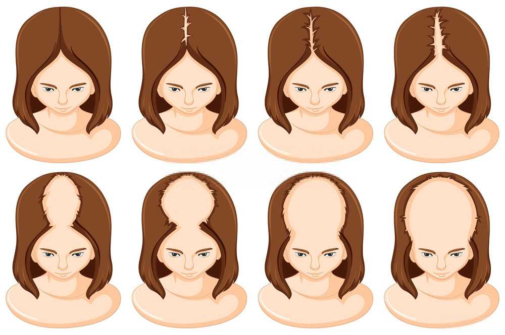Stages of hair loss in woman