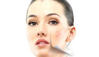 Menghilangkan Bintik Hitam - Solusi Perawatan Kulit Wajah