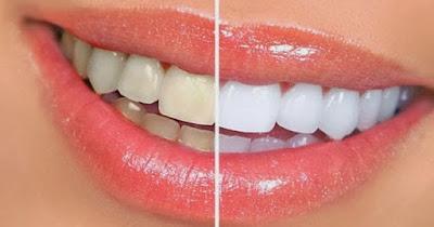 Cara Merawat Gigi Kuning Agar Putih Kembali