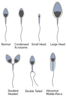 通常の精子と形体異常の精子