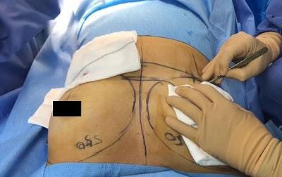 Πλαστικός χειρουργός μεταδίδει απευθείας αυξητική στήθους και άλλες επεμβάσεις