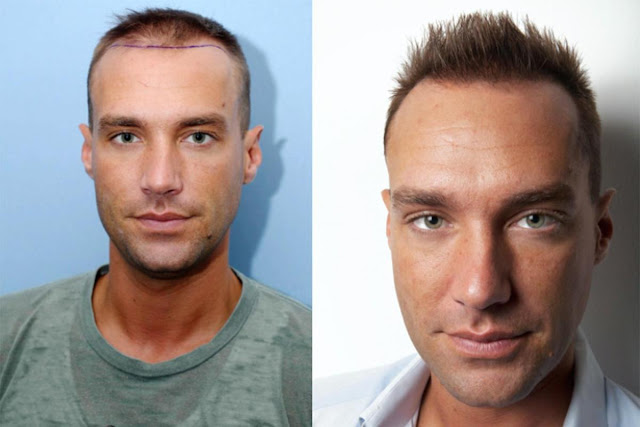 Image result for Celebrity Hair Transplants - Undergoing Cosmetic Procedures As a Public Figure