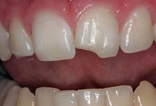 Răng cửa bị mẻ phải làm sao khắc phục?
