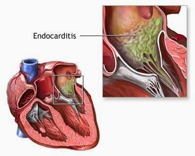 obat infeksi jantung