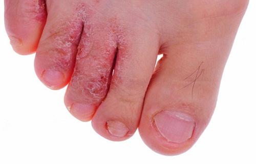 وصفة طبيعية لعلاج الامراض الجلدية المزمنة