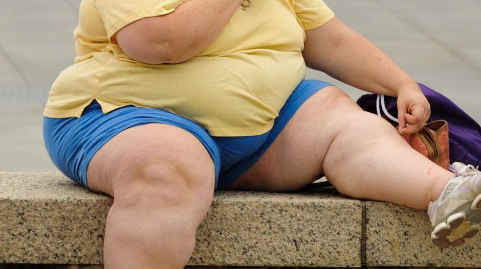 Obezite size de gelebilir!