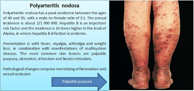 What are the Diagnostic criteria for polyarteritis nodosa (PAN)?
