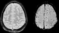 brain concussion recovery