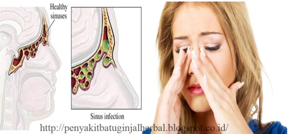 Cara Mengobati Penyakit Radang Sinusitis | AHLINYA ...