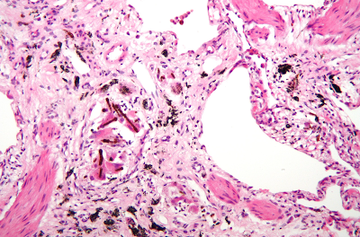 A high magnification micrograph with a hematoxylin and eosin stain coloring of a lung biopsy of an asbestosis patient, showing characteristic ferruginous bodies and interstitial fibrosis. asbestosis, pneumoconiosis, alveoli, alveolus, microscope, reading, physical examination, bronchus, bronchioli
