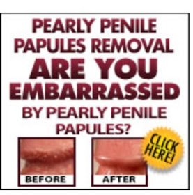 Penile what papules pearly is How Are