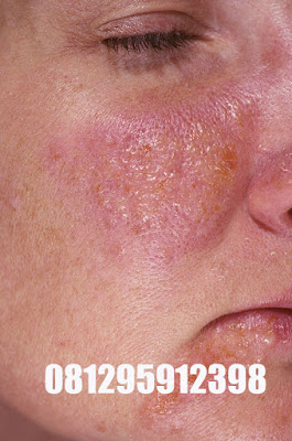 Pengobatan Herbal Penyakit Herpes Solusi Menghilangkan Penyakit Herpes Di Wajah