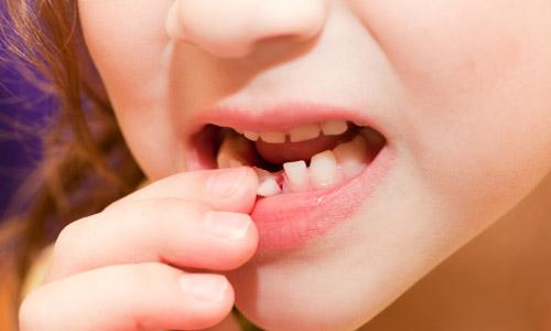 Phương pháp làm khít răng thưa hiệu quả nhất