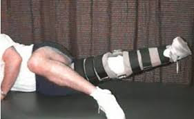 Các bước luyện tập  sau khi tái tạo dây chằng chéo sau khớp gối